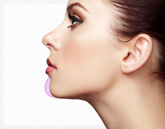 무턱교정,무턱필러,무턱보톡스,턱필러,턱보톡스,턱끝필러,압구정피부과,위드윈피부과