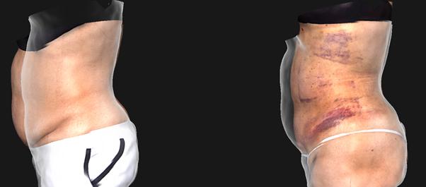 베이저2,베이저,베이저지방흡입,베이저2지방흡입,압구정지방흡입,강남지방흡입,연예인지방흡입,걸그룹지방흡입,지방흡입잘하는곳,압구정피부과,위드윈피부과
