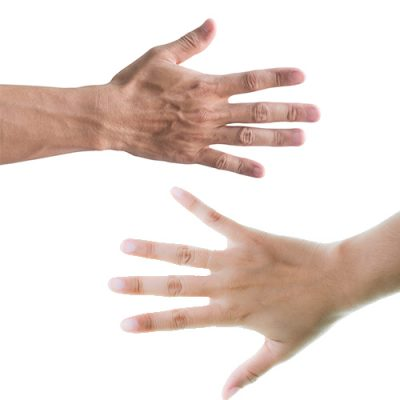 손등필러,손등주름필러,손필러,손주름필러,손등주름개선,필러부작용,이마필러,입술필러,볼필러,코필러,짱구이마,입술필러부작용,코필러부작용,과도한이마필러,이마필러부작용,필러제거,이물질제거,압구정필러,압구정필러제거,압구정피부과,위드윈피부과,코필러,관자놀이필러,입술필러,입꼬리필러,다크서클필러,눈밑필러,애교필러,애교살필러,눈두덩이필러,손등필러,코필러,채움,채움필러,국산필러,관자놀이필러